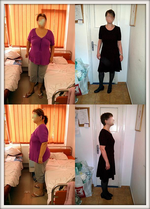 MG, 39 ani, gastric sleeve, 113 kg/ 70 kg – 43 kg in 11 luni