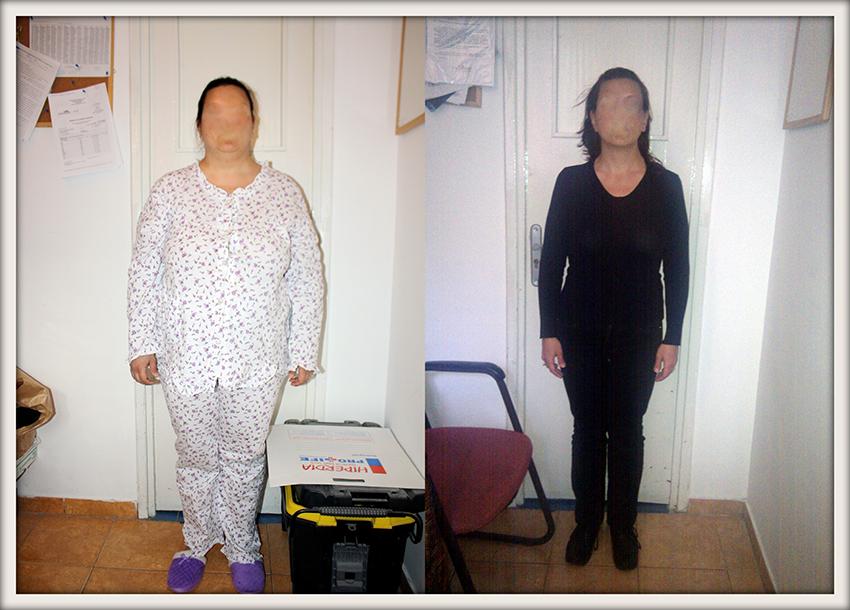 AB, 39 ani, inel gastric, 90,2 kg/58 kg – 32,2 kg in 8 luni