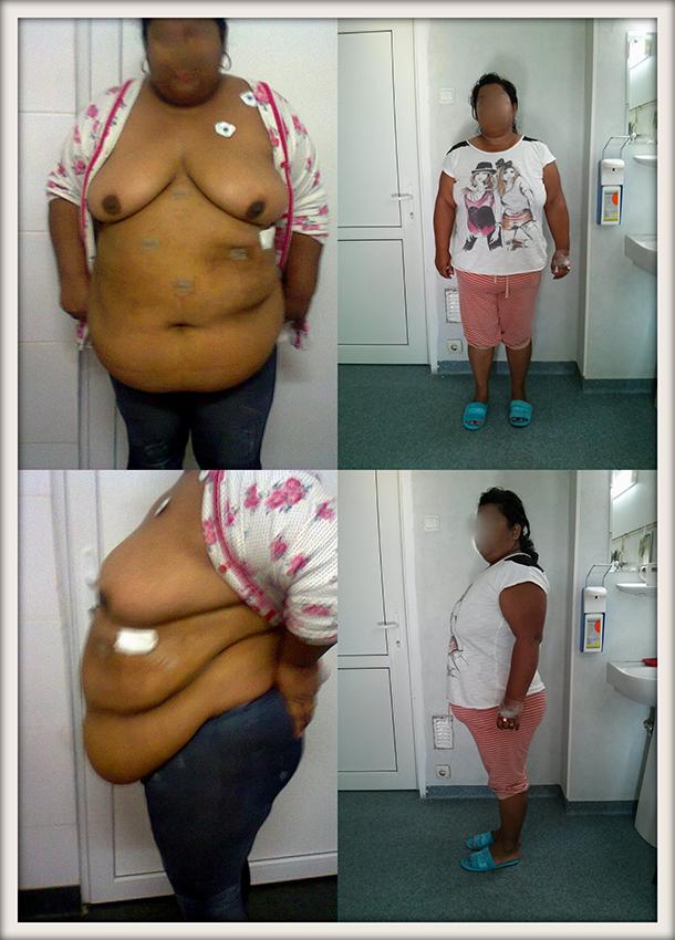 CS, 31 ani, gastric sleeve, 116 kg/ 90 kg – 26 kg in 6 luni