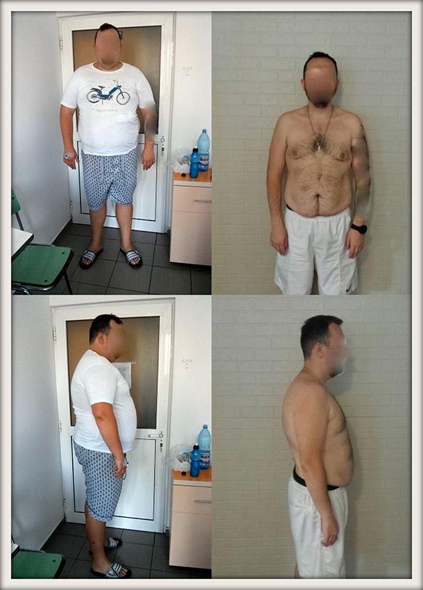 LD,  29 ani, gastric sleeve, 150 kg/ 90 kg – 60 kg in 10 luni