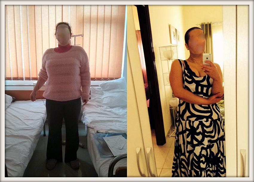 EM, 35 ani, gastric sleeve, 103 kg, 82 kg – 21 kg in 5 luni