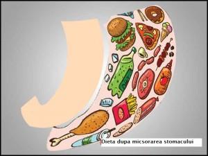 regim dupa micsorarea stomacului(gastric sleeve)