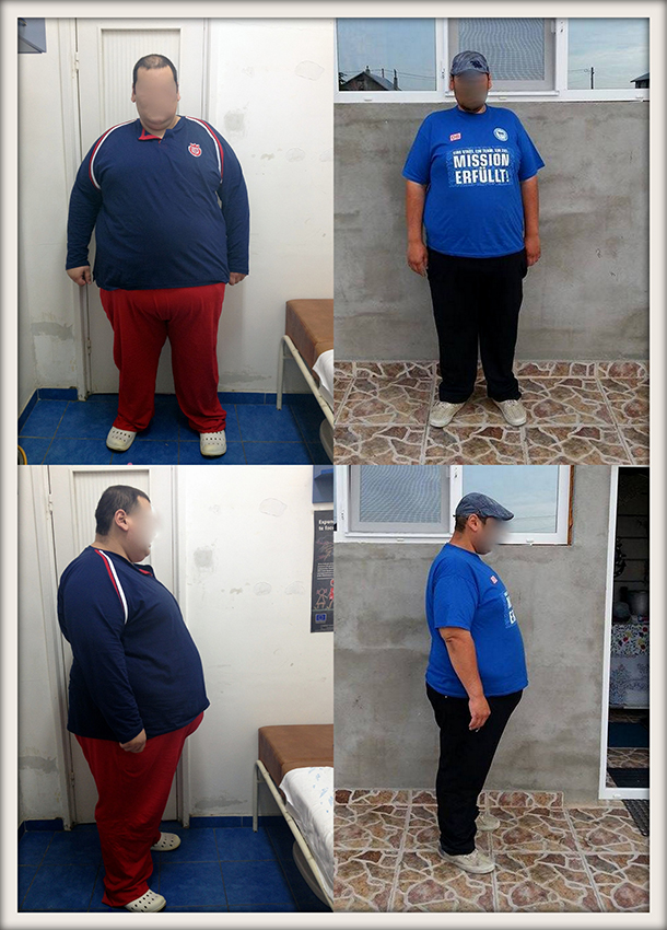 FS, 28 ani, gastric sleeve, 228 kg/150kg – 78 kg in 15 luni