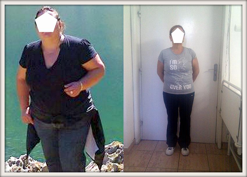 LB, 38 ani, gastric sleeve, 105 kg/ 70 kg – 35 kg in luni