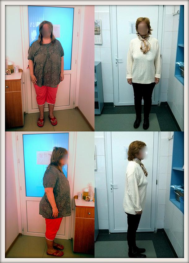 AZ, 43 ani, gastric sleeve, 120 kg/ 72 kg – 48 kg in 5 luni
